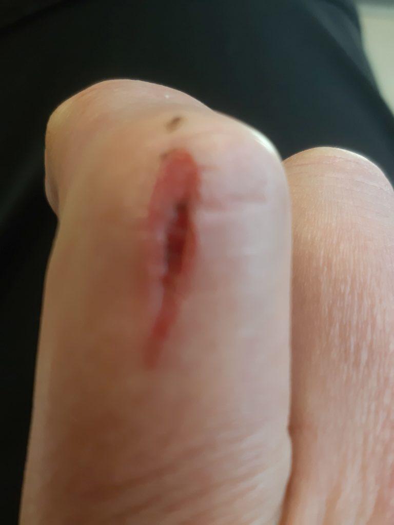 Schnitt im Finger